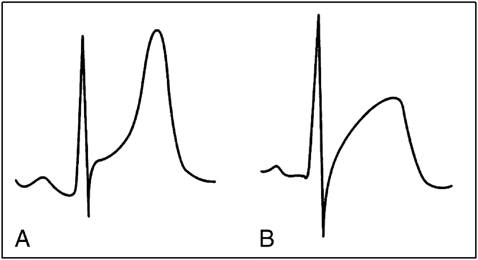 Electrocardiographic manifestations of cardiac infectious