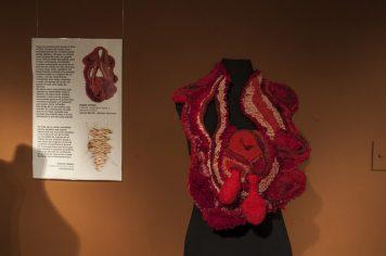 Primer Premio - Coraza/ Aprender a hacer y deshacer el amor - Jessica Morillo-Ansiosa Hormona
