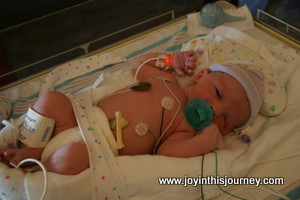 Little Boy in the NICU