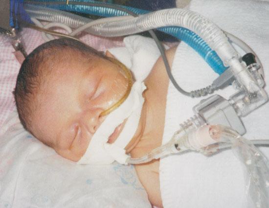 Elli on the ventilator