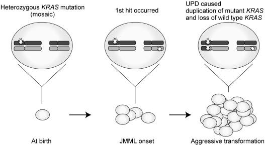 Aggressive Transformation of Juvenile Myelomonocytic