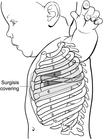 An innovative method of pediatric chest wall