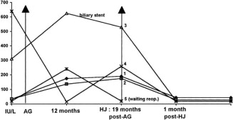 Is the appendix graft suitable for routine biliary surgery