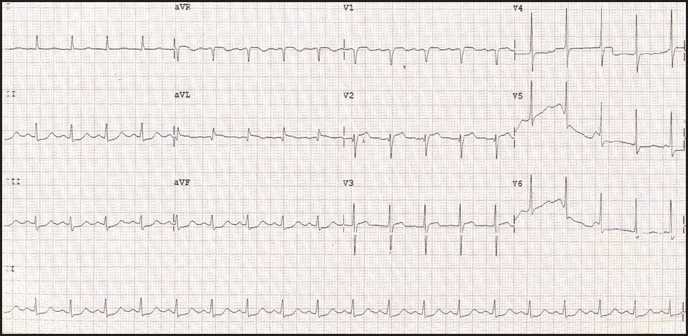 An unusual complication of stroke thrombolysis Venkatesan