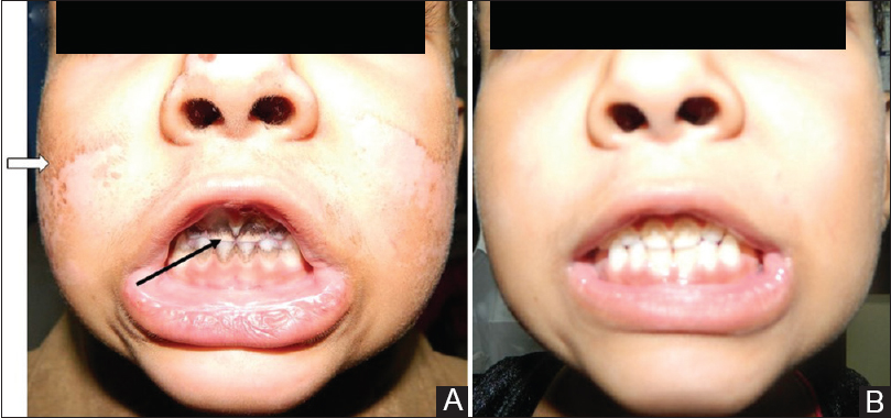 Doxycycline-induced staining of teeth and malar rash in a ...