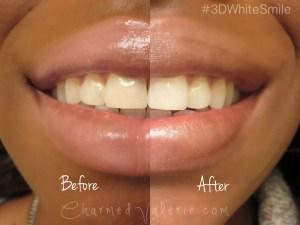 クレスト3Dホワイト ホワイトニング 歯 効果 使用後