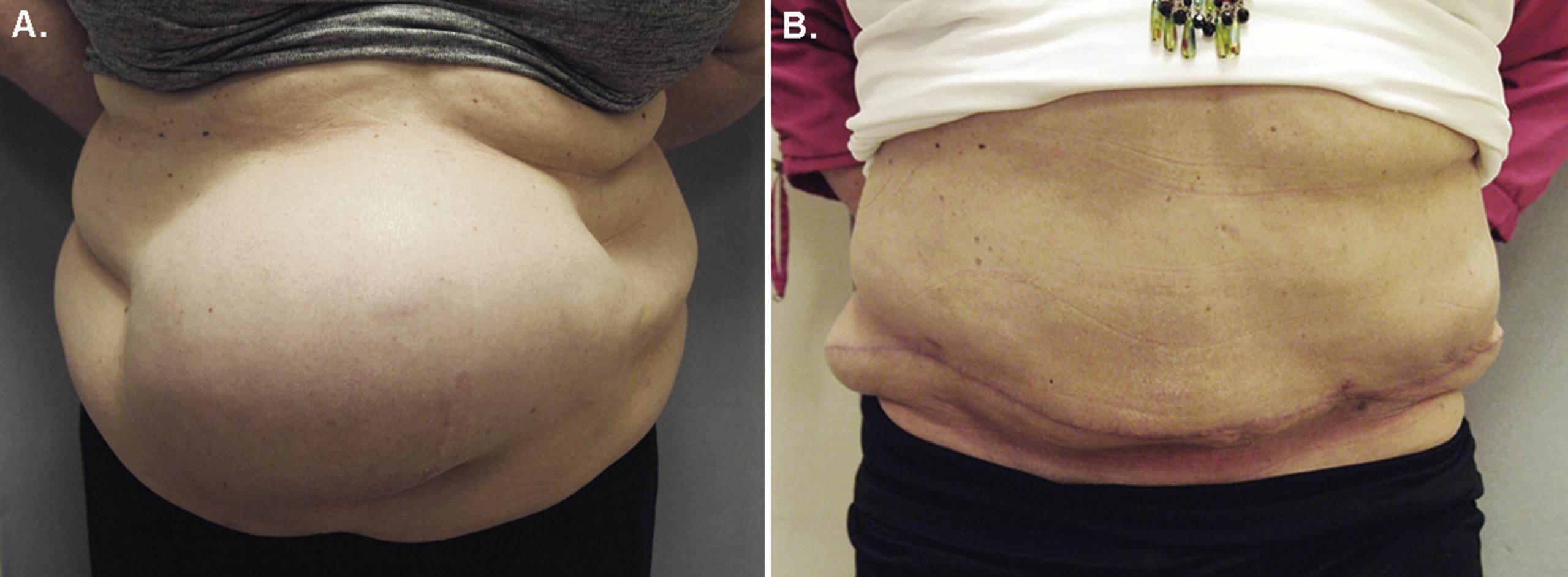 Hernia Repair Panniculectomy