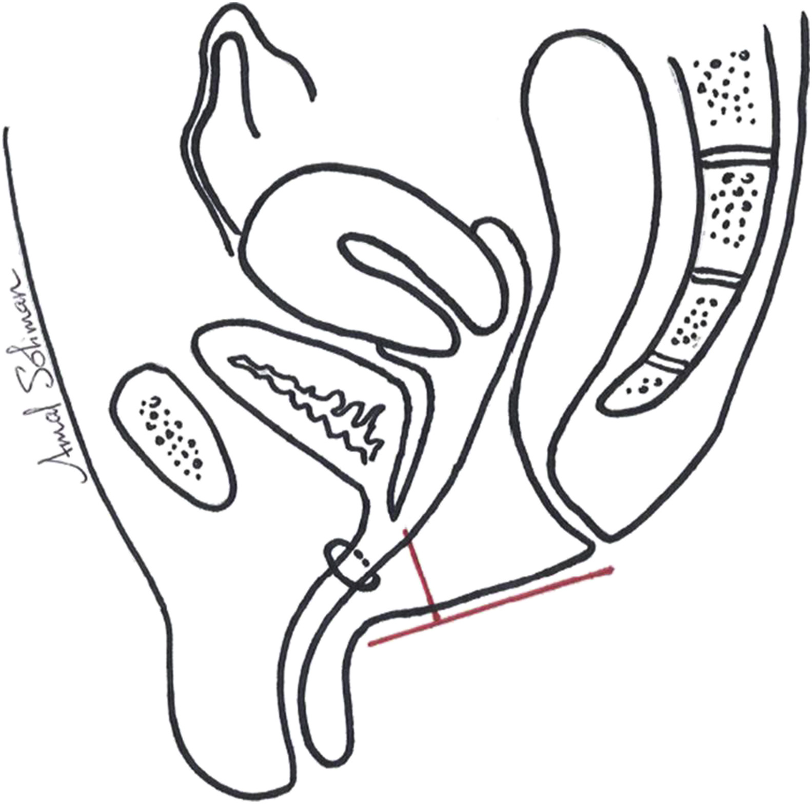 Anatomical measurements of the urogenital sinus in