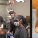 São Vicente usa microcirurgia para reimplante de dedo