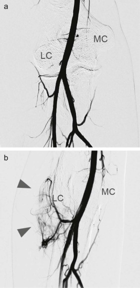 Transcatheter arterial embolization of abnormal vessels as