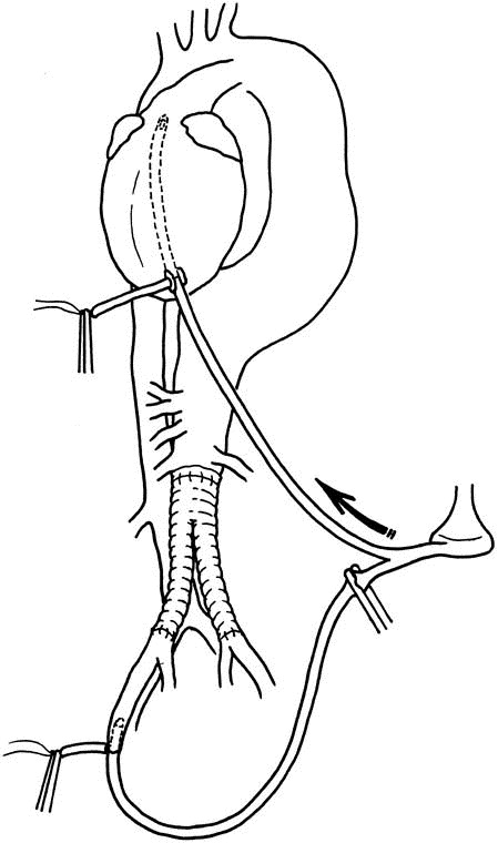 Transapical aortic cannulation for hypothermic aortic