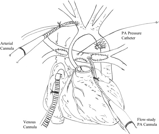 Intraoperative pulmonary flow study for decision making in