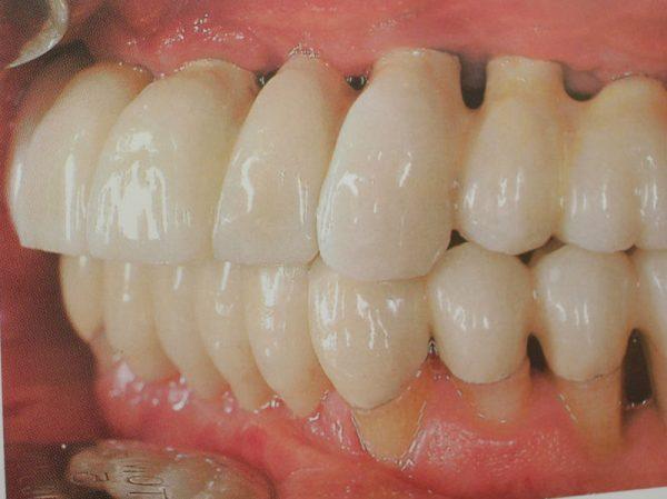 curso-implantes-032