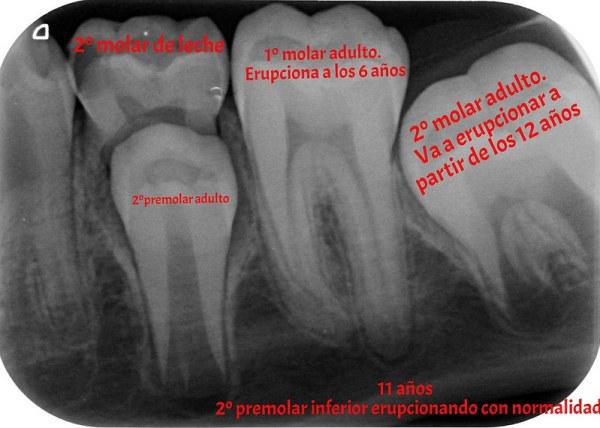 Denticion mixta-juan balboa
