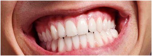 oclusion-dental