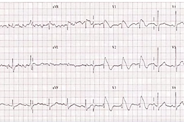 A 57-Year-Old Man with a Chief Complaint of Syncope 3