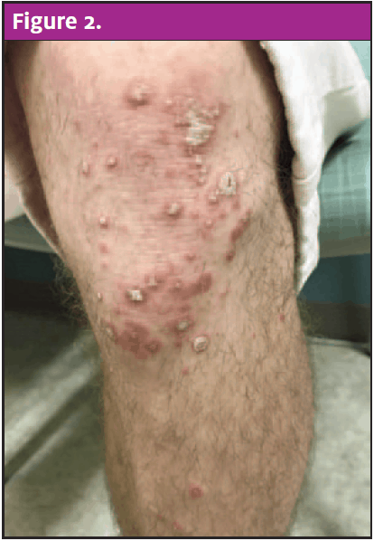 Guttate Psoriasis: An Uncommon Cause of a Rash   Journal ...