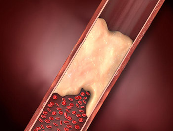 Grasa en las Arterias