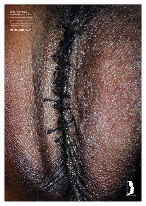 19366139 1776900719003247 8399390707729958286 n - Campaña contra la mutilación genital femenina