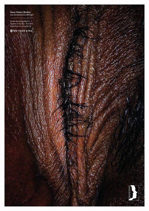 19420588 1776900712336581 4669280582097197862 n - Campaña contra la mutilación genital femenina