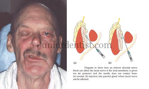 Complications of Inferior Alveolar Nerve Block - Transient ...