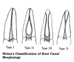 endodontic root canals classification by weines Archives