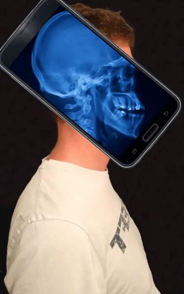 aplikasi kamera tembus pandang X-Ray Body Scanner