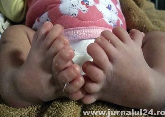 multe degete la picioare