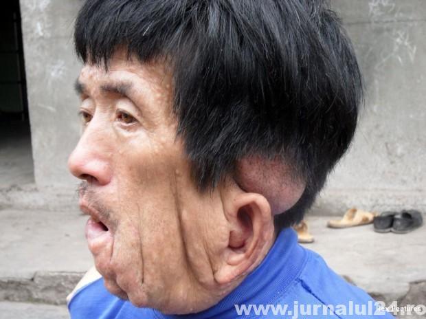 neurofirbomatofa