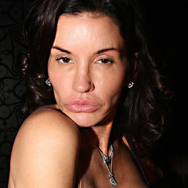 10 cei cei mai urâți oameni din lume datorită operațiilor estetice!