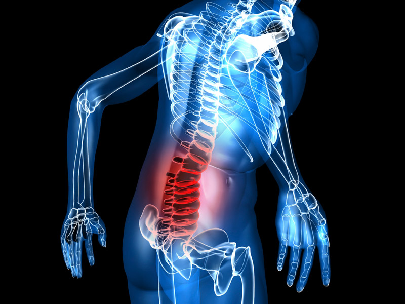 Exercițiile fizice corespunzătoare reduc durerile de spate