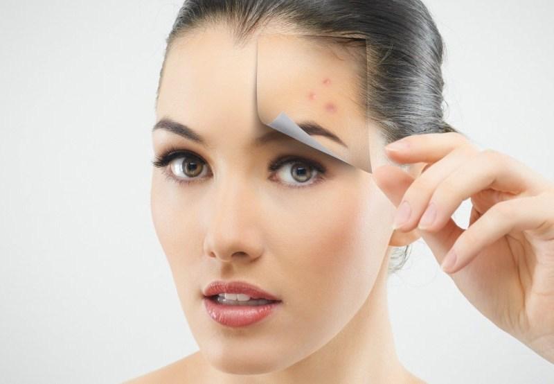 Problemele dermatologice se trateaza cu rabdare