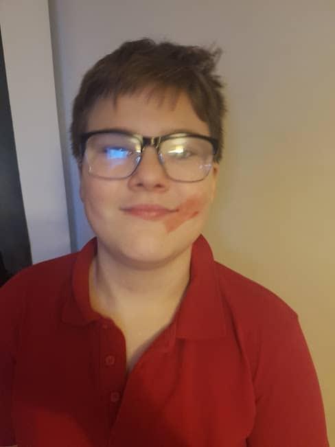 12 year old boy with lipstick smear