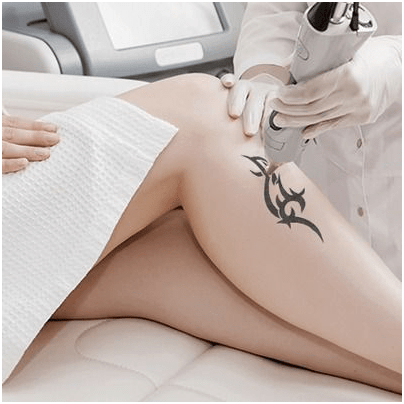 Laser Tattoo Removal: Expectations vs. Reality