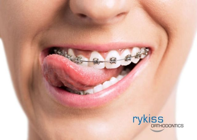 An Intended Significance of Orthodontic Proceedings