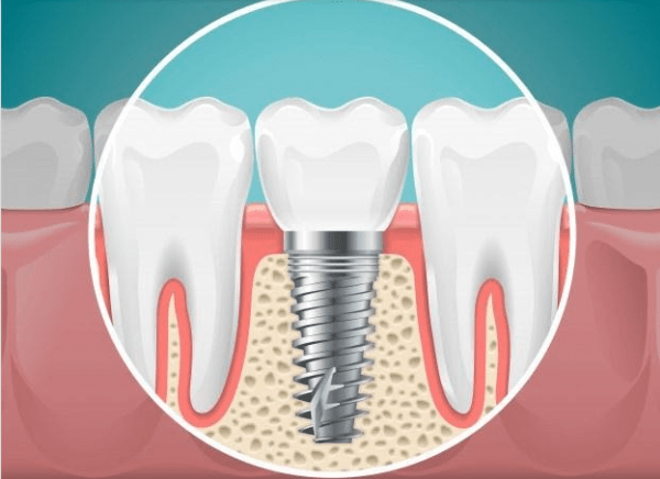 5 Tips to Prevent Dental Implant Infection