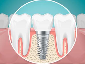 Best Clinics for Getting Dental Implants in Dubai