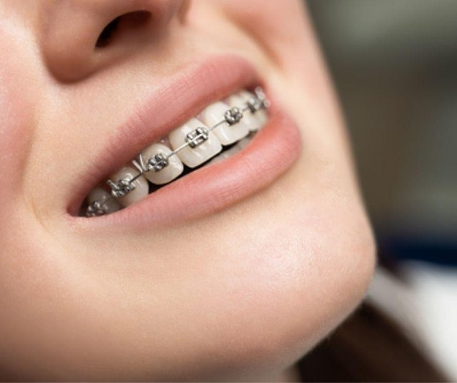 For fixing teeth contortions, Invisalign is the ultimate choice