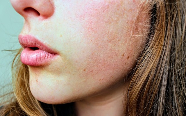 Worried About Dry Skin? Here Are 8 Natural DIY Fixes For Dry Skin