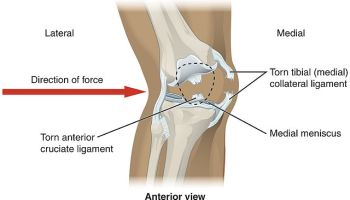 How Much Is a Broken Knee Worth? Slip and Fall, and Other Claims