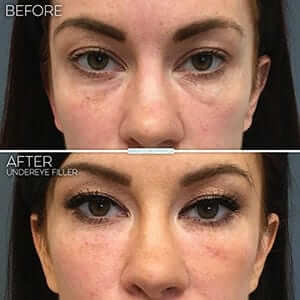 Understand Undereye Bag Types Before You Regret – Juvly ...