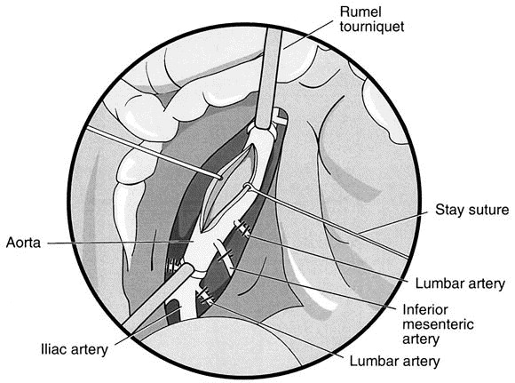 Laparoscopic aortobifemoral bypass  Journal of Vascular