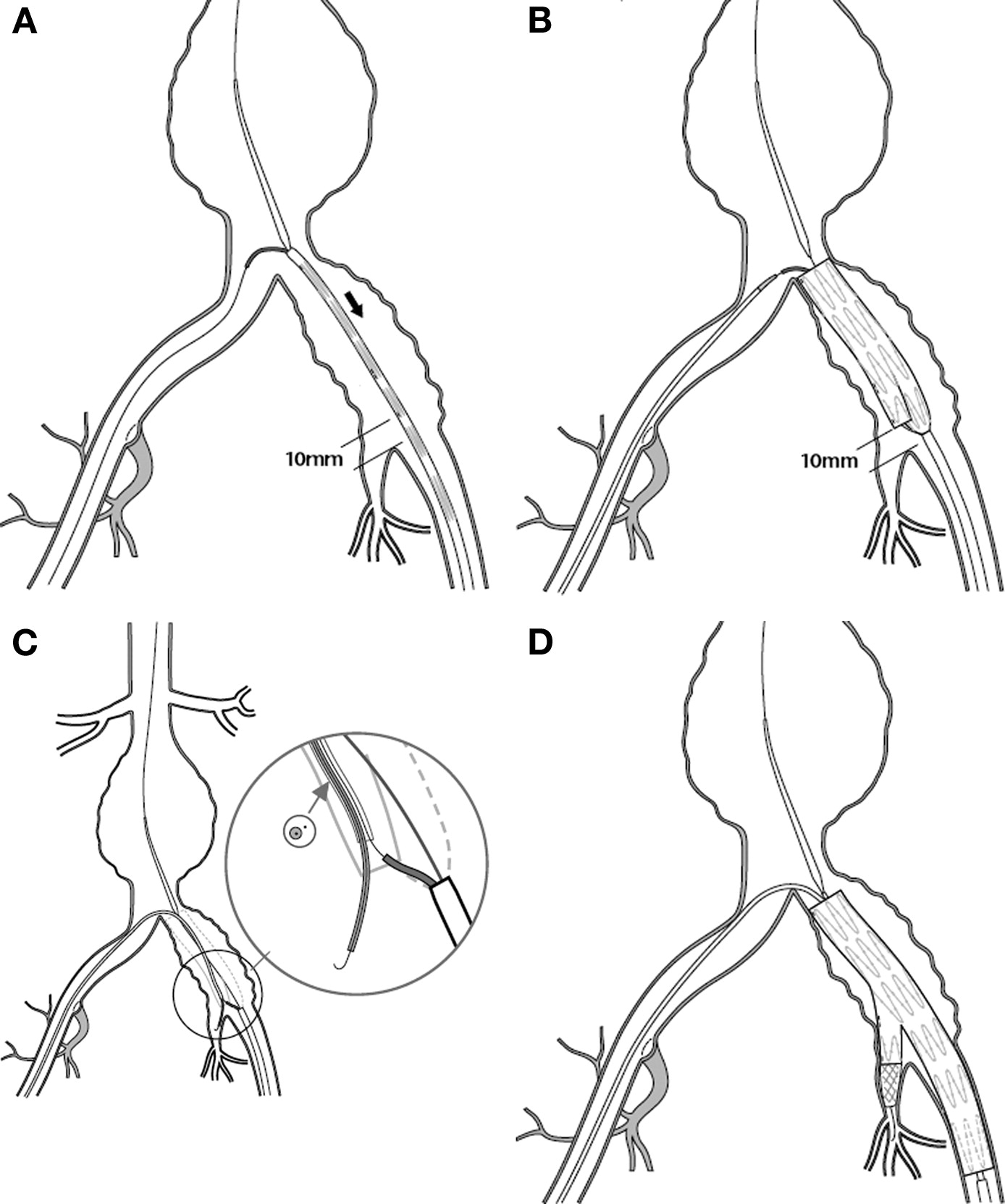 Endovascular Abdominal Aortic Aneurysm Repair In Patients