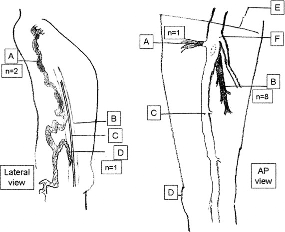 Thrombosis in unusual sites of the lower extremity veins