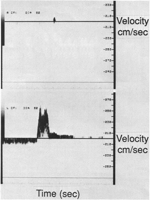 Quantitative segmental evaluation of venous valvular