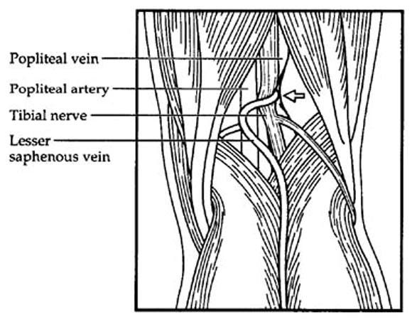 Popliteal vein entrapment presenting as deep venous
