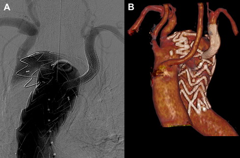 Total endovascular repair of aberrant left subclavian