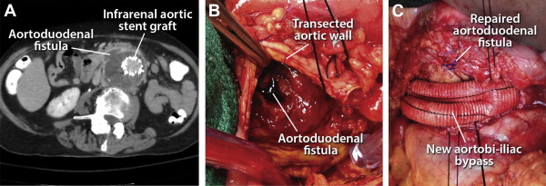 Reinfection after resection and revascularization of infected infrarenal abdominal aortic grafts