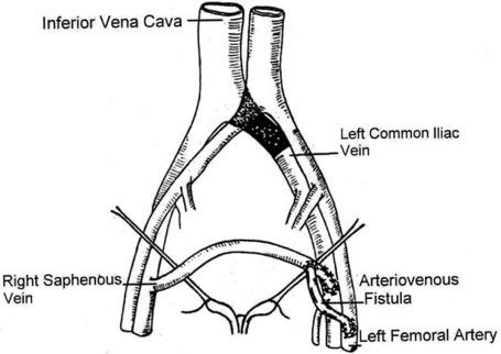 A spontaneous rupture of the external iliac vein revealed