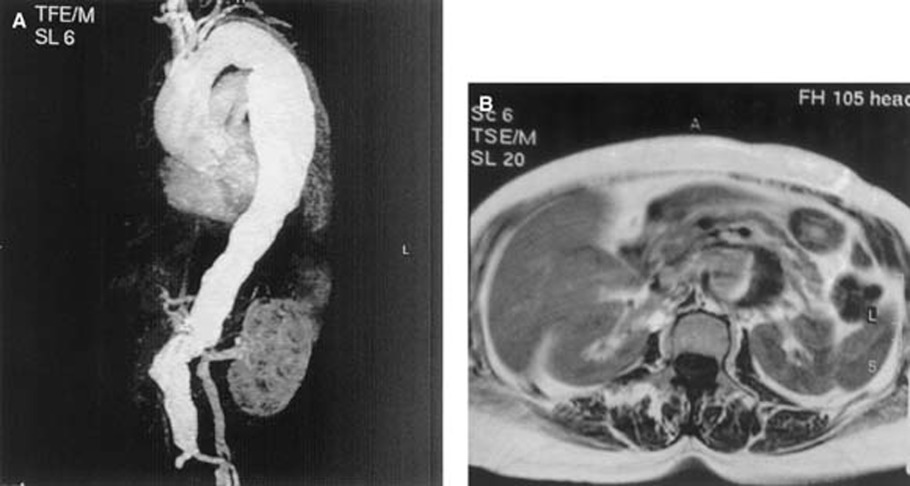 Primary aortoduodenal fistula A case report and review of the literature  Journal of Vascular